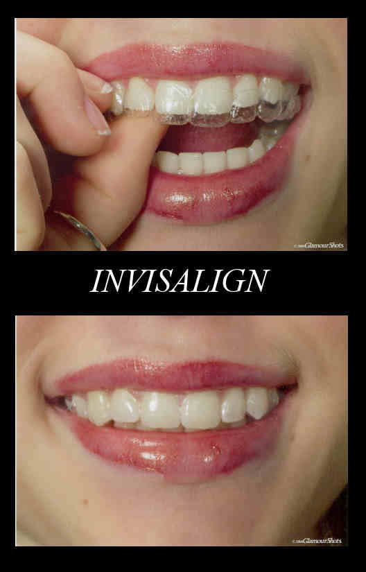Invisalign | TaylorMadeMarketing©